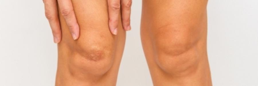 ?cuales son las lesiones mas frecuentes en la rodilla